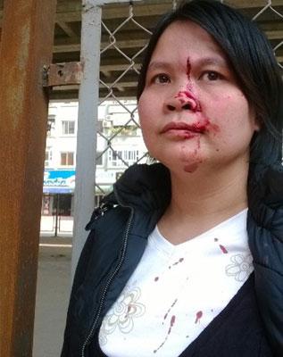 Chị Nguyễn Thị H bị đánh chảy máu đầu ngày 26/10